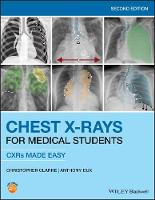 Chest X-Rays for Medical Students: CXRs Made Easy, 2nd Edition